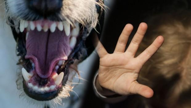 Детето нападнато од кучиња остана без бубрег и е на апарати за дишење